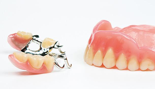 假牙容易掉,用假牙黏著劑就能解決?