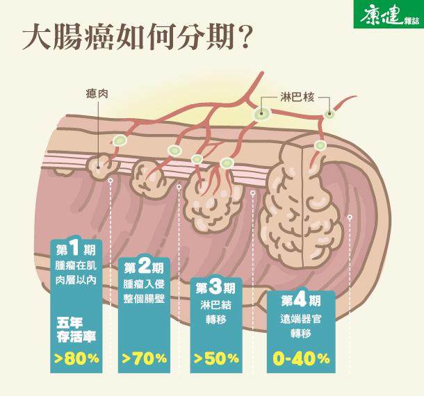 大腸癌1、2、3、4 期怎麼分?-圖解健康-康健名家觀點