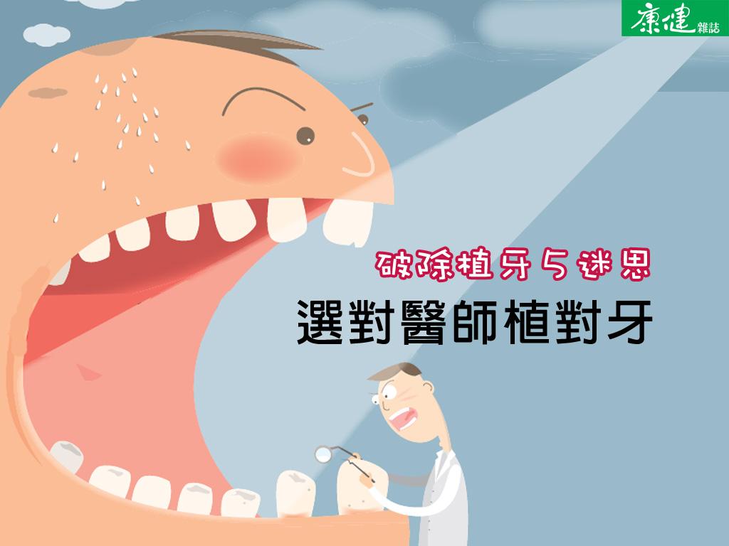 選對醫生植對牙
