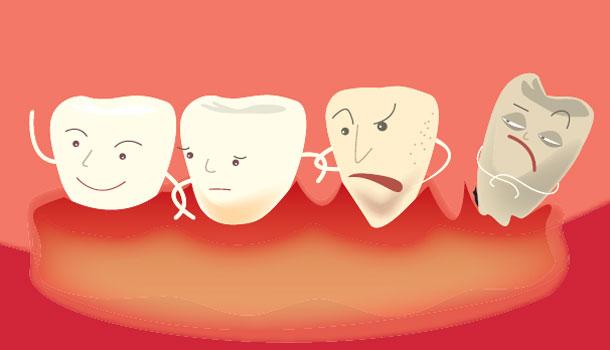 小心,牙周病已經悄悄找上你!關鍵9QA