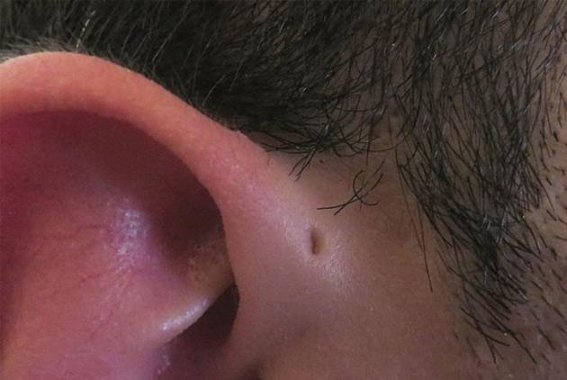 為什麼有些人耳朵上方會有個小洞?