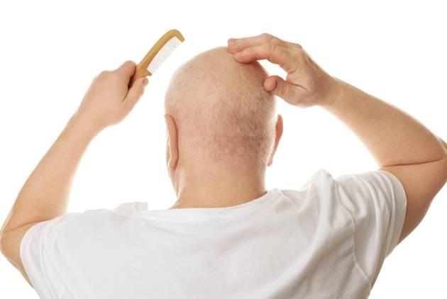 對抗禿頭,是英雄式的行為!