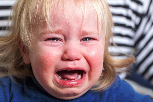 異位性皮膚炎找上門寶寶竟成關公臉 醫師...